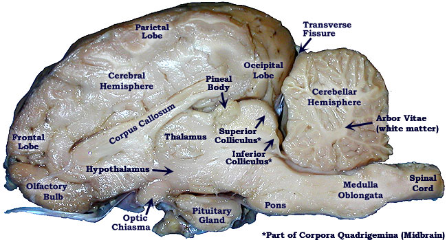 ... diagrams and pictures to helpyou locate items on your sheep brain