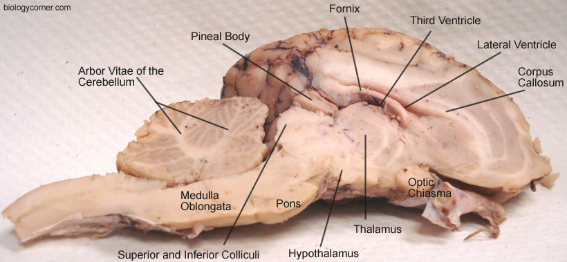 Sheep brain anatomy ventral - photo#36