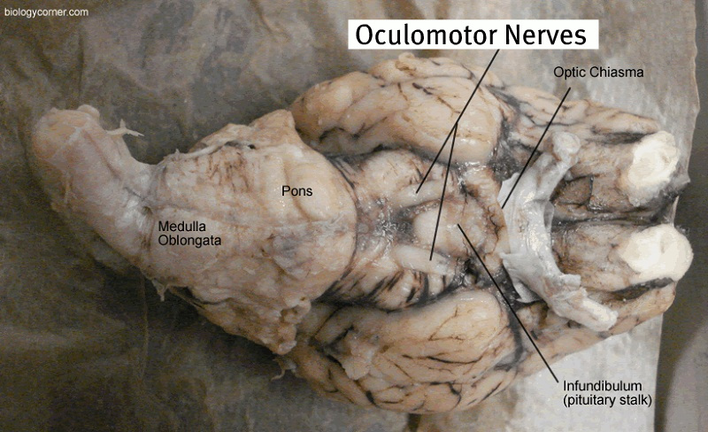 Sheep brain anatomy ventral - photo#29