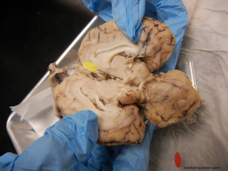 Sheep Brain Dissection Lab – Sheep Brain Dissection Worksheet