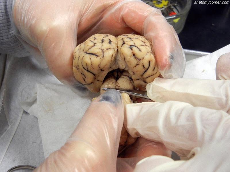 Sheep Brain Dissection Lab